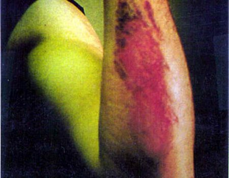 An abrasion from a motorcycle accident.