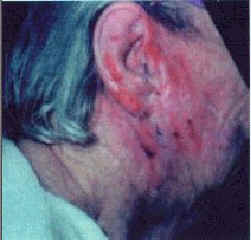 Elderly Woman with severe eczema.  As of this photo she had been treated by a physician with conventional type therapy, (cortisone, antibiotics, IV, oral).  All prior medications were discontinued.