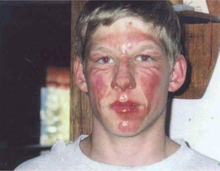 Face Burn